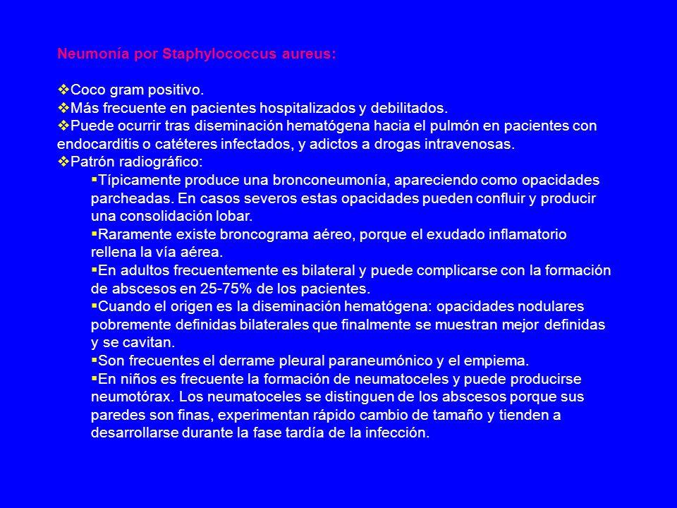 Neumonía por Staphylococcus aureus: Coco gram positivo. Más frecuente en pacientes hospitalizados y debilitados. Puede ocurrir tras diseminación hemat