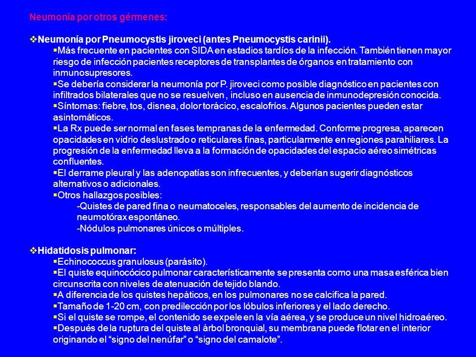 Neumonía por otros gérmenes: Neumonía por Pneumocystis jiroveci (antes Pneumocystis carinii). Más frecuente en pacientes con SIDA en estadios tardíos