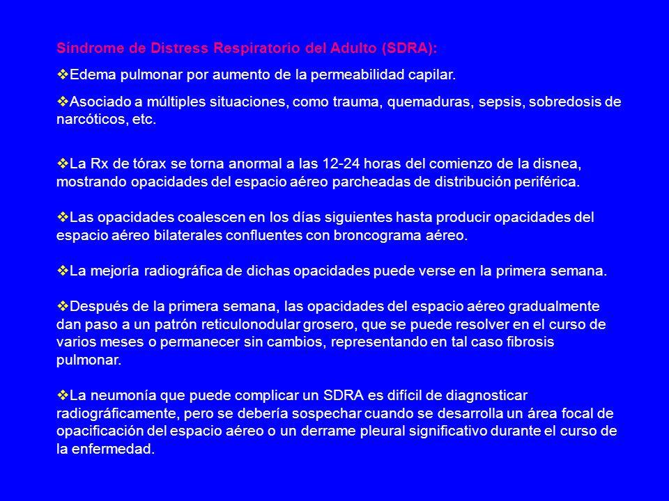 Síndrome de Distress Respiratorio del Adulto (SDRA): Edema pulmonar por aumento de la permeabilidad capilar. Asociado a múltiples situaciones, como tr