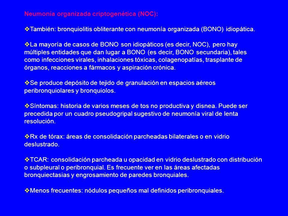 Neumonía organizada criptogenética (NOC): También: bronquiolitis obliterante con neumonía organizada (BONO) idiopática. La mayoría de casos de BONO so
