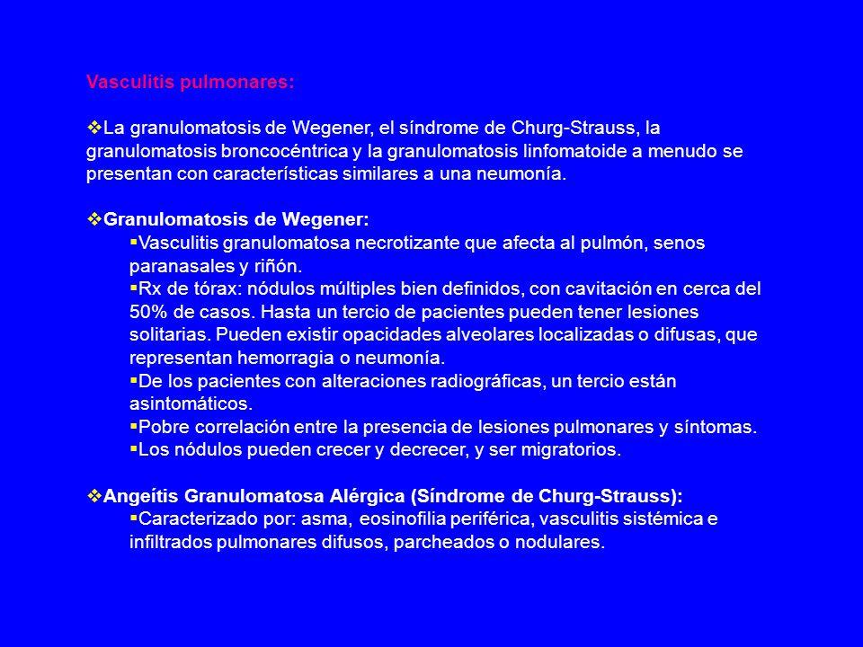 Vasculitis pulmonares: La granulomatosis de Wegener, el síndrome de Churg-Strauss, la granulomatosis broncocéntrica y la granulomatosis linfomatoide a