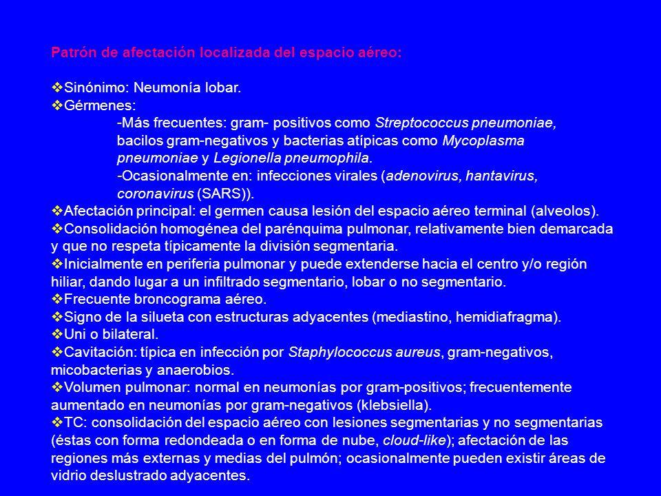 Patrón de afectación localizada del espacio aéreo: Sinónimo: Neumonía lobar. Gérmenes: -Más frecuentes: gram- positivos como Streptococcus pneumoniae,