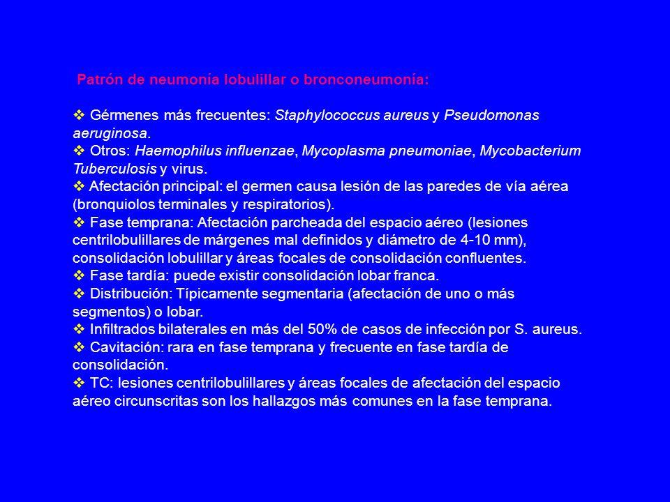 Patrón de neumonía lobulillar o bronconeumonía: Gérmenes más frecuentes: Staphylococcus aureus y Pseudomonas aeruginosa. Otros: Haemophilus influenzae