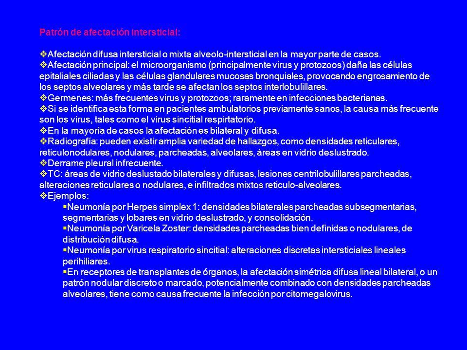 Neumonía organizada criptogenética (NOC): También: bronquiolitis obliterante con neumonía organizada (BONO) idiopática.