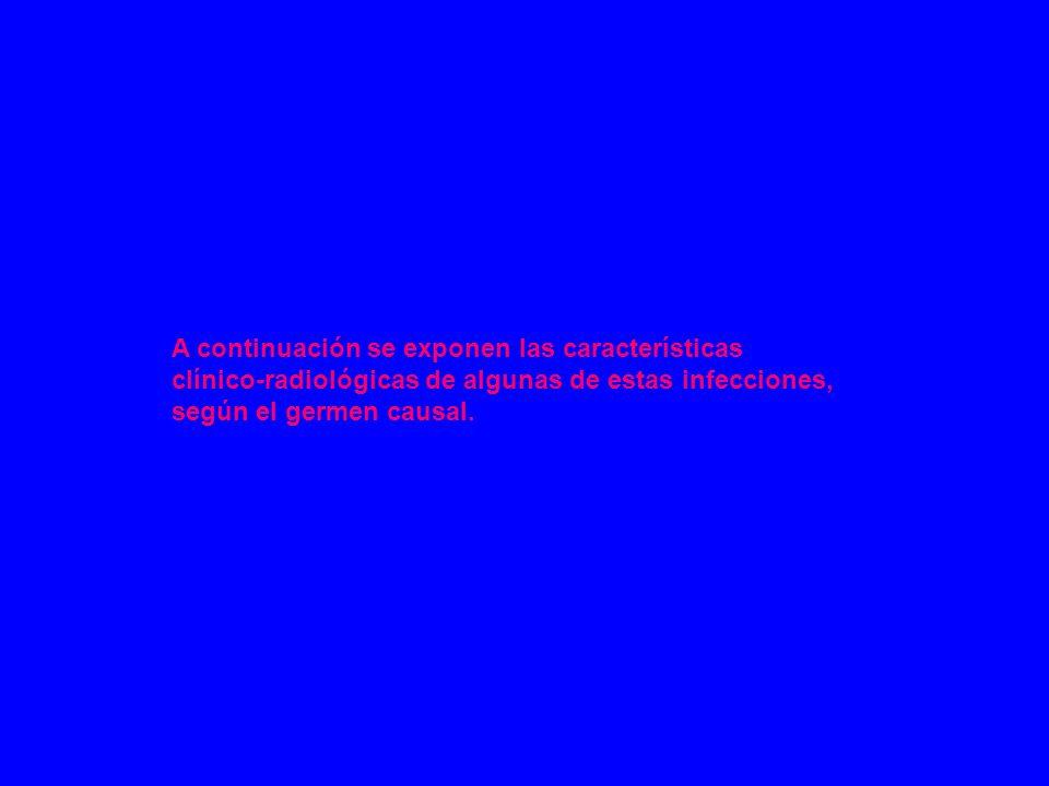 Neumonía por Streptococcus pneumoniae (neumococo): Coco gram positivo.