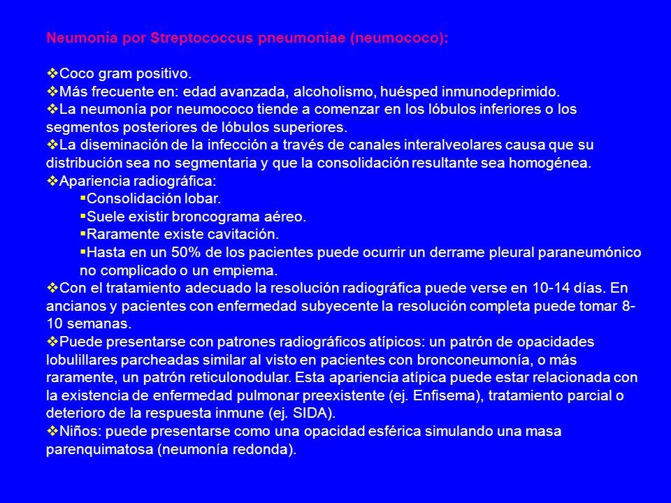 Neumonía por otros gérmenes: Neumonía por Pneumocystis jiroveci (antes Pneumocystis carinii).
