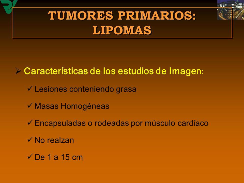 TUMORES PRIMARIOS: LIPOMAS Características de los estudios de Imagen : Lesiones conteniendo grasa Masas Homogéneas Encapsuladas o rodeadas por músculo
