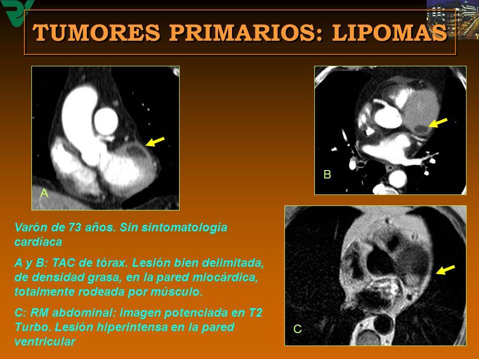 Varón de 73 años. Sin sintomatología cardíaca A y B: TAC de tórax. Lesión bien delimitada, de densidad grasa, en la pared miocárdica, totalmente rodea