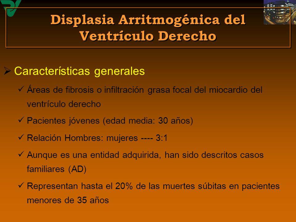 Displasia Arritmogénica del Ventrículo Derecho Características generales Áreas de fibrosis o infiltración grasa focal del miocardio del ventrículo der