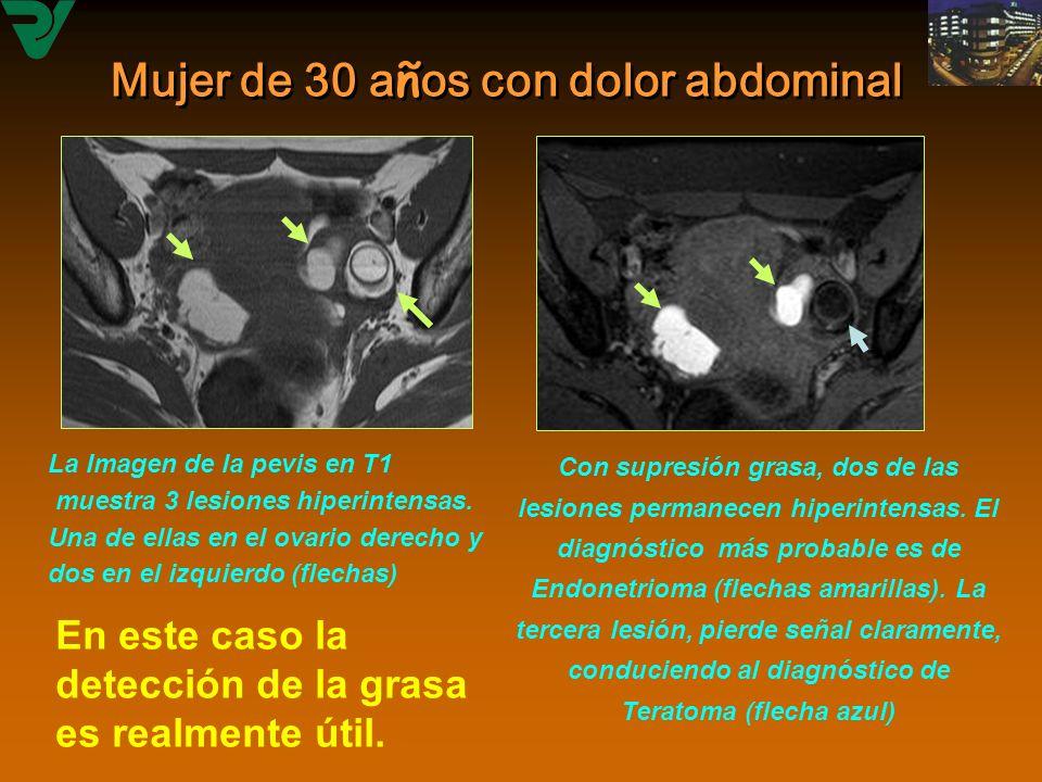 Mujer de 30 a ñ os con dolor abdominal Con supresión grasa, dos de las lesiones permanecen hiperintensas. El diagnóstico más probable es de Endonetrio