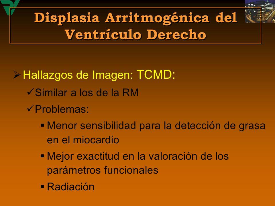 Hallazgos de Imagen: TCMD: Similar a los de la RM Problemas: Menor sensibilidad para la detección de grasa en el miocardio Mejor exactitud en la valor
