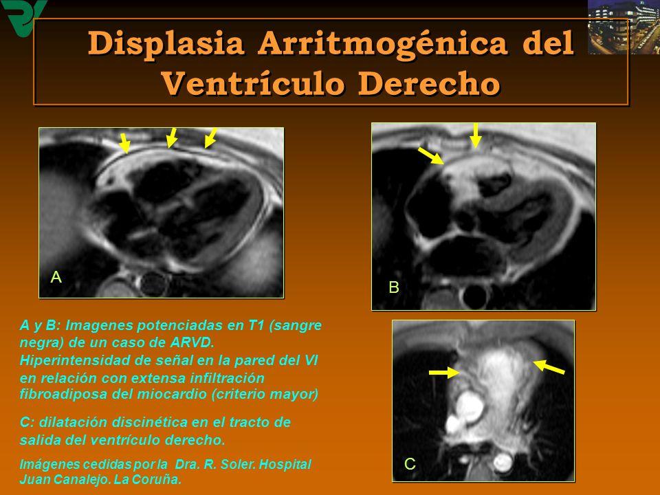 A y B: Imagenes potenciadas en T1 (sangre negra) de un caso de ARVD. Hiperintensidad de señal en la pared del VI en relación con extensa infiltración