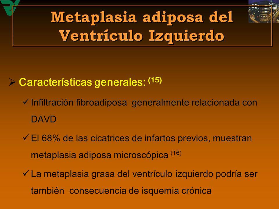 Metaplasia adiposa del Ventrículo Izquierdo Características generales: (15) Infiltración fibroadiposa generalmente relacionada con DAVD El 68% de las