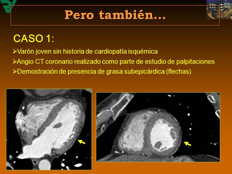 Pero también… Varón joven sin historia de cardiopatía isquémica Angio CT coronario realizado como parte de estudio de palpitaciones Demostración de pr