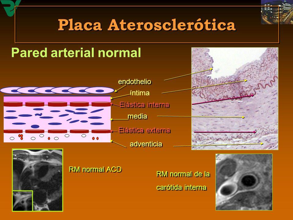 Placa Aterosclerótica Pared arterial normal endothelio íntima Elástica interna media Elástica externa adventicia RM normal ACD RM normal de la carótid