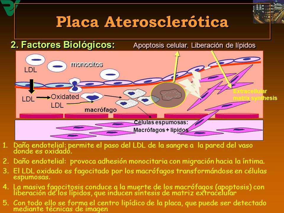 Placa Aterosclerótica 1.Daño endotelial: permite el paso del LDL de la sangre a la pared del vaso donde es oxidado. 2.Daño endotelial: provoca adhesió