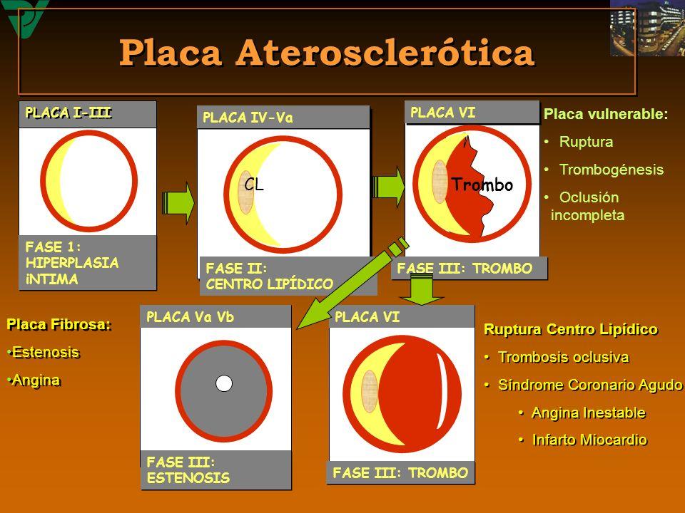 Placa Aterosclerótica PLACA VIPLACA Va Vb PLACA VI PLACA IV-Va PLACA I-III Trombo CL FASE II: CENTRO LIPÍDICO FASE III: TROMBO FASE III: ESTENOSIS FAS