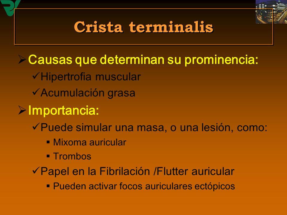 Crista terminalis Causas que determinan su prominencia: Hipertrofia muscular Acumulación grasa Importancia: Puede simular una masa, o una lesión, como