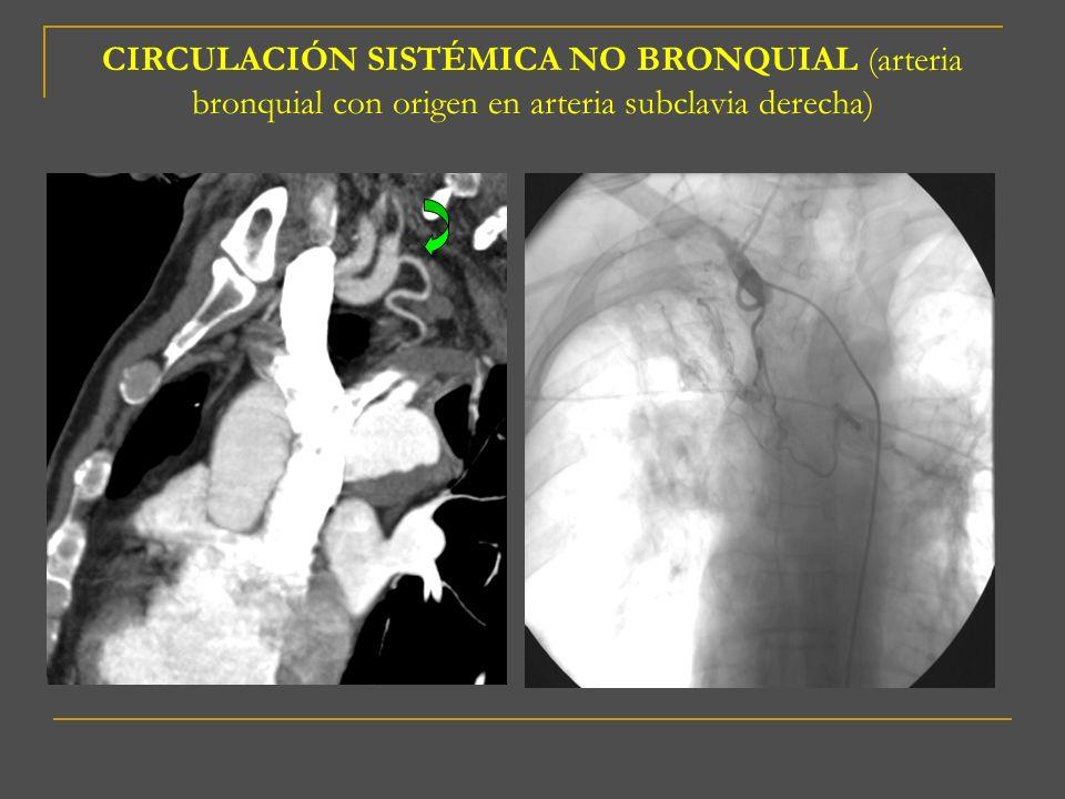 CIRCULACIÓN SISTÉMICA NO BRONQUIAL (arteria bronquial con origen en arteria subclavia derecha)
