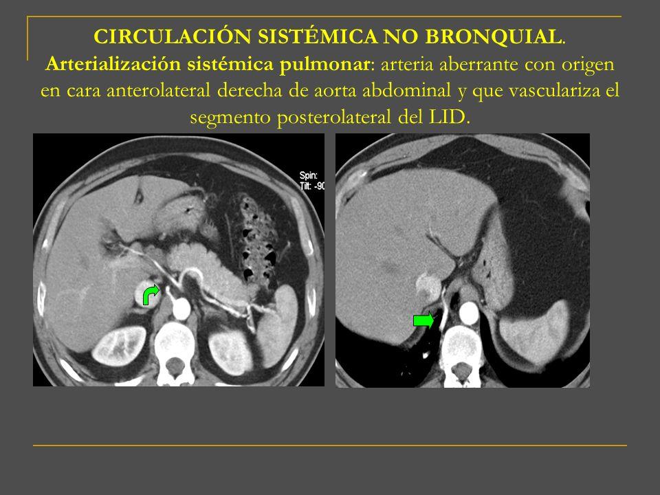 CIRCULACIÓN SISTÉMICA NO BRONQUIAL. Arterialización sistémica pulmonar: arteria aberrante con origen en cara anterolateral derecha de aorta abdominal
