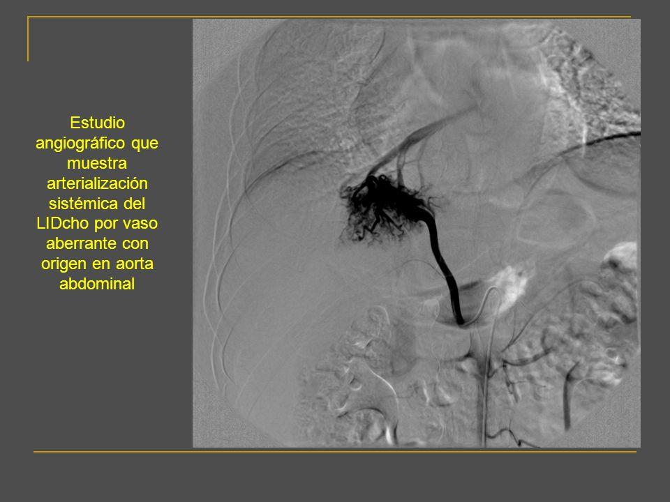 UTILIDAD DEL TCMD EN LA DETECCIÓN DE VASOS DE CIRCULACIÓN SISTÉMICA NO BRONQUIAL El TCMD también detecta hallazgos asociados a la existencia de vasos de circulación sistémica no bronquial Engrosamiento pleural (>3mm), Engrosamiento pleural (>3mm), muy frecuentemente asociado a la existencia de circulación sistémica no bronquial que se desarrollan a lo largo de la pleura y se hipertrofian como respuesta a un proceso inflamatorio.