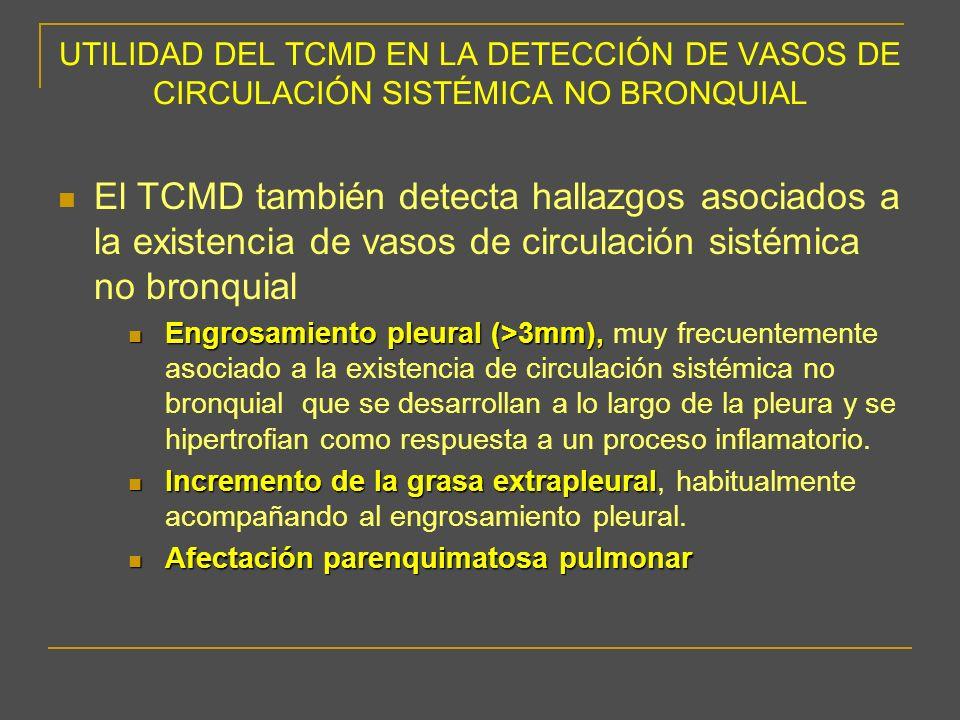 UTILIDAD DEL TCMD EN LA DETECCIÓN DE VASOS DE CIRCULACIÓN SISTÉMICA NO BRONQUIAL El TCMD también detecta hallazgos asociados a la existencia de vasos