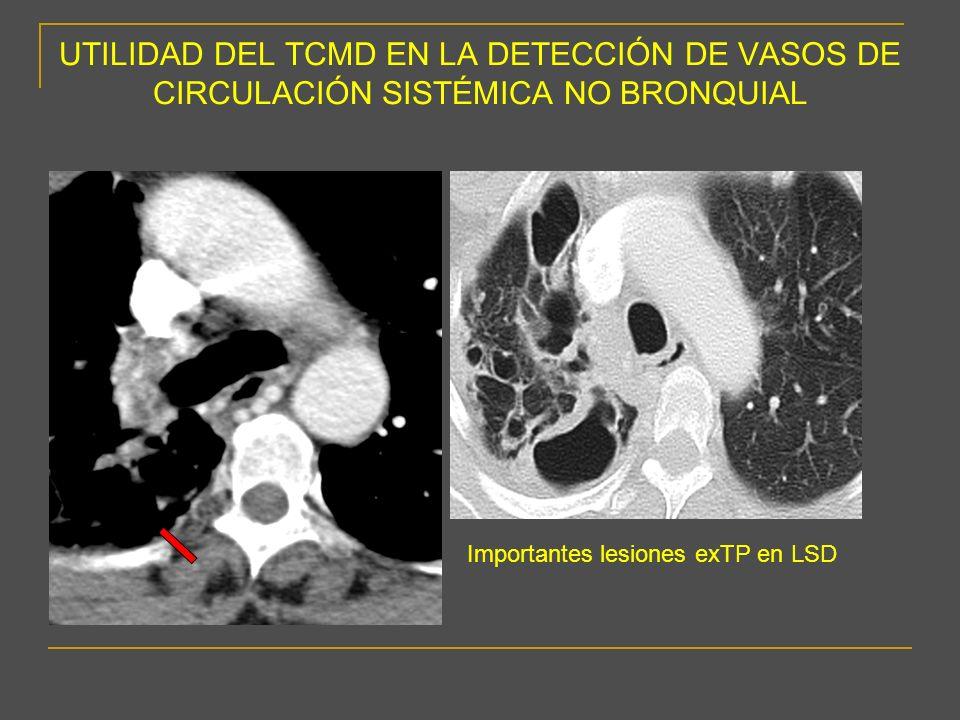 CIRCULACIÓN SISTÉMICA NO BRONQUIAL -Conclusiones - La existencia de circulación sistémica no bronquial es una de las causas de hemoptisis recurrente tras una correcta embolización de arterias bronquiales.