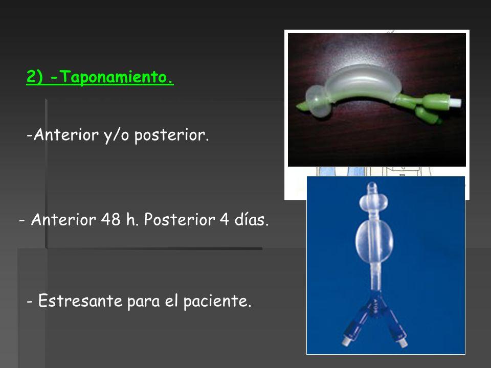 2) -Taponamiento. -Anterior y/o posterior. - Anterior 48 h. Posterior 4 días. - Estresante para el paciente.