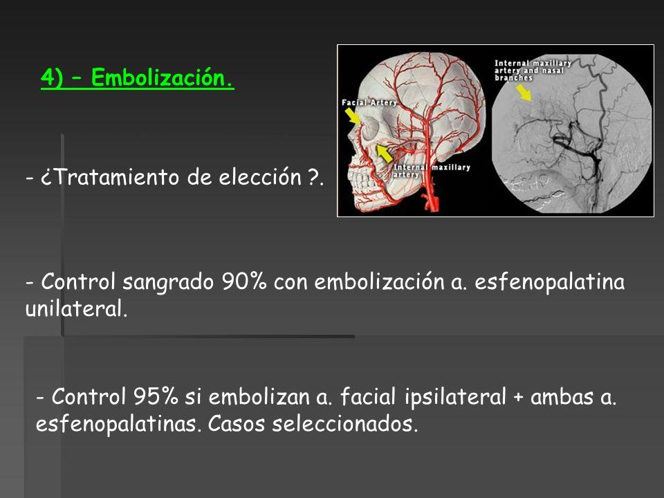 4) – Embolización. - ¿Tratamiento de elección ?. - Control sangrado 90% con embolización a. esfenopalatina unilateral. - Control 95% si embolizan a. f