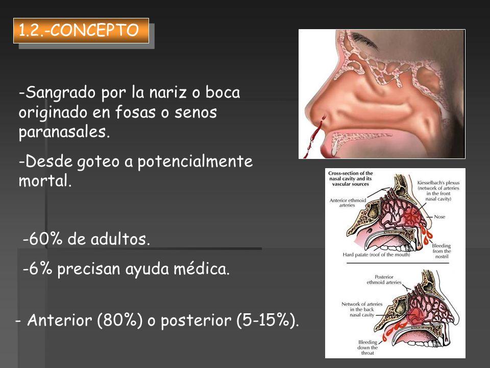 Anatomía arterial cavidad nasal - A.esfenopalatina (ACE) septo y pared lateral.