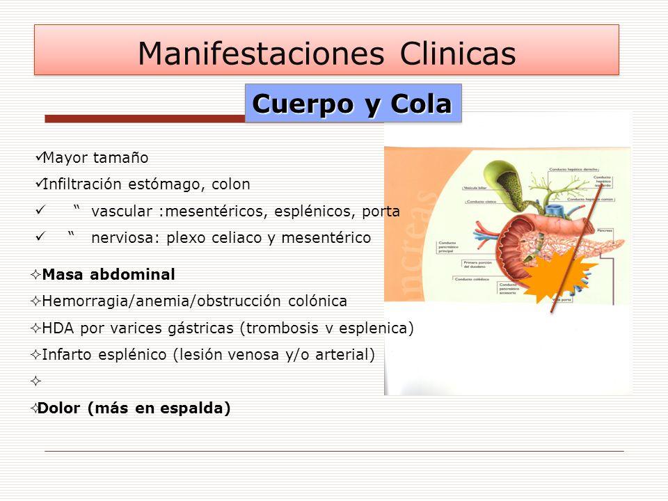 Mayor tamaño Infiltración estómago, colon vascular :mesentéricos, esplénicos, porta nerviosa: plexo celiaco y mesentérico Masa abdominal Hemorragia/an