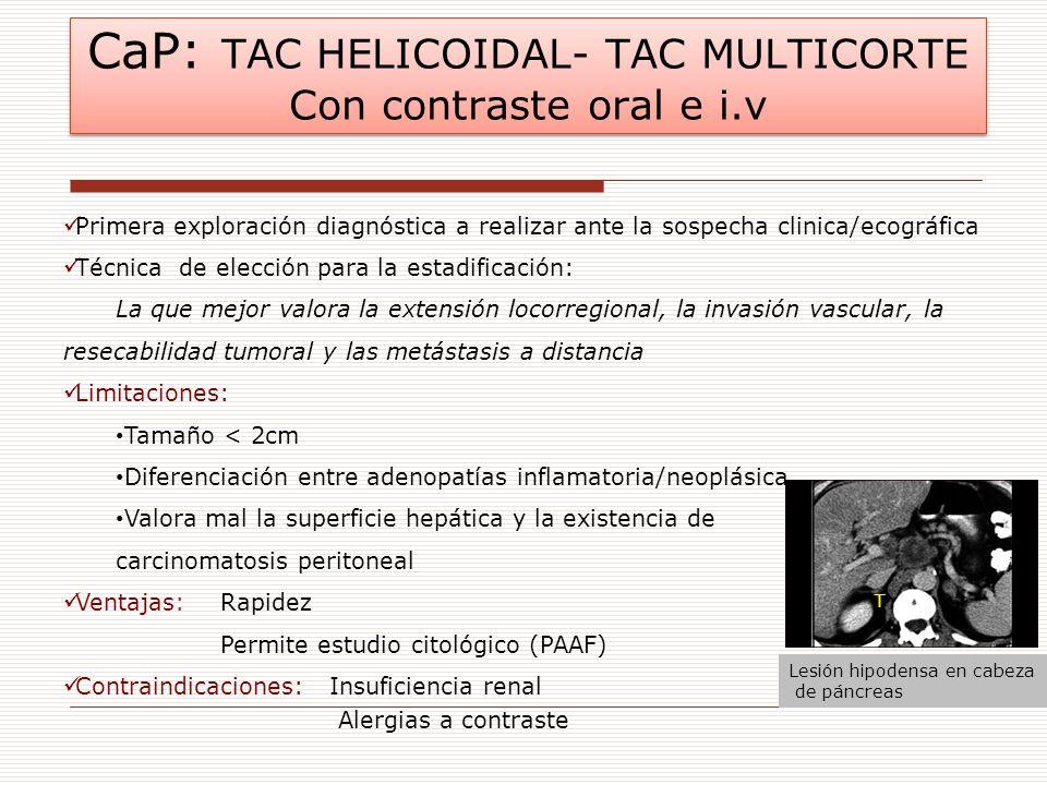 CaP: TAC HELICOIDAL- TAC MULTICORTE Con contraste oral e i.v Primera exploración diagnóstica a realizar ante la sospecha clinica/ecográfica Técnica de