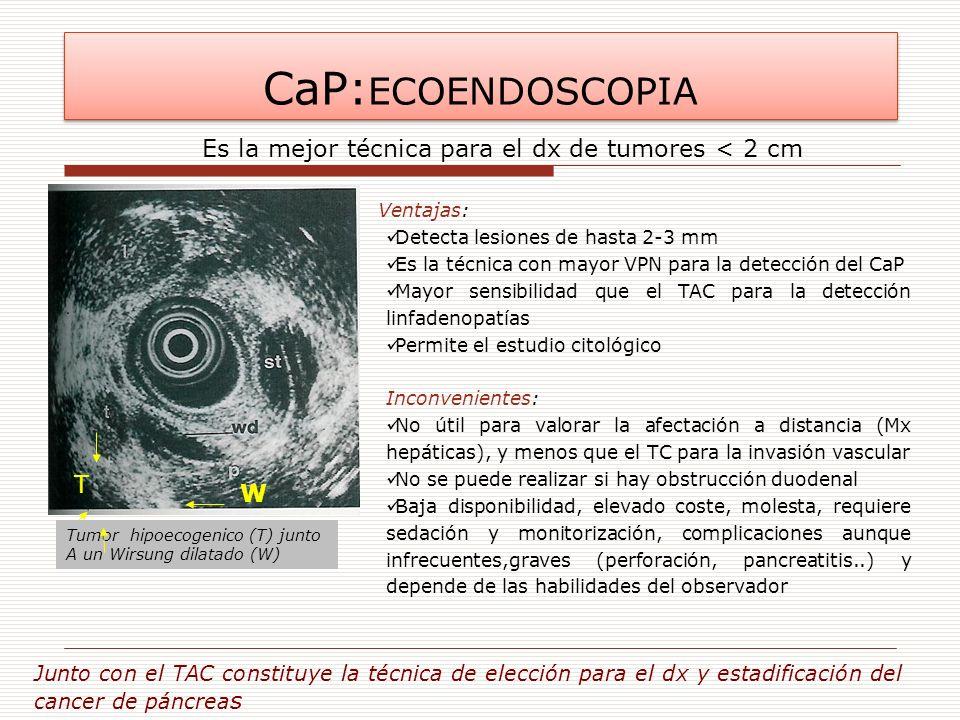 CaP: ECOENDOSCOPIA Detecta lesiones de hasta 2-3 mm Es la técnica con mayor VPN para la detección del CaP Mayor sensibilidad que el TAC para la detecc