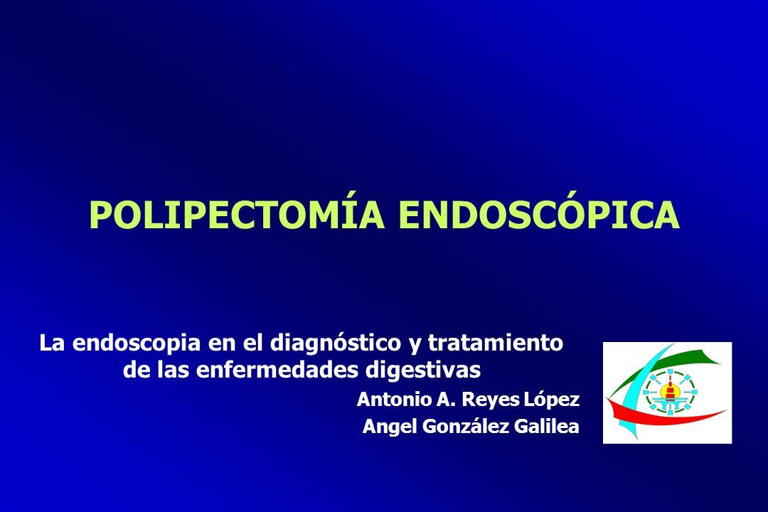POLIPECTOMÍA ENDOSCÓPICA La endoscopia en el diagnóstico y tratamiento de las enfermedades digestivas Antonio A. Reyes López Angel González Galilea