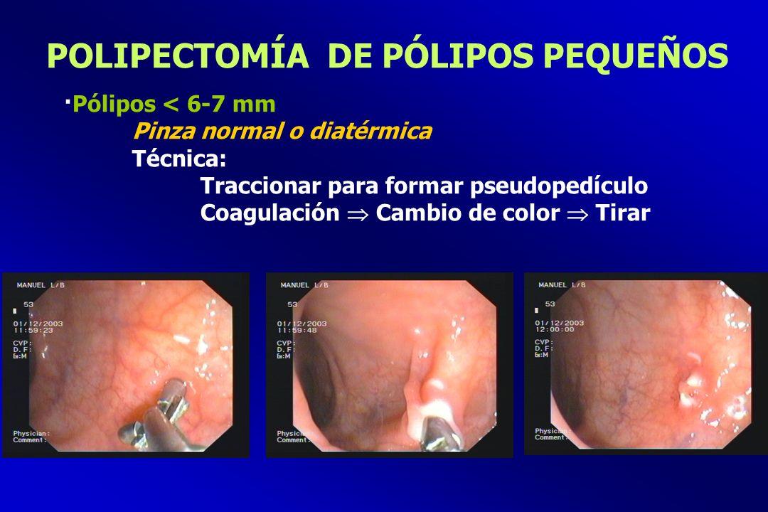 POLIPECTOMÍA DE PÓLIPOS PEQUEÑOS ·Pólipos < 6-7 mm Pinza normal o diatérmica Técnica: Traccionar para formar pseudopedículo Coagulación Cambio de colo