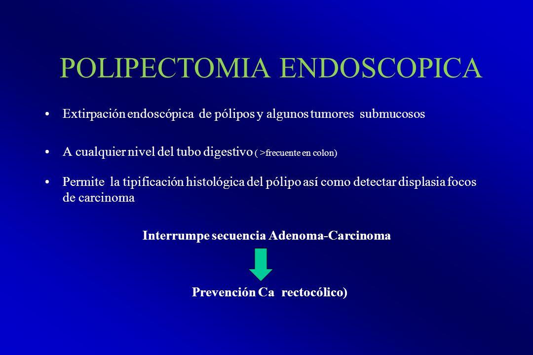 POLIPECTOMIA ENDOSCOPICA Extirpación endoscópica de pólipos y algunos tumores submucosos A cualquier nivel del tubo digestivo ( >frecuente en colon) P