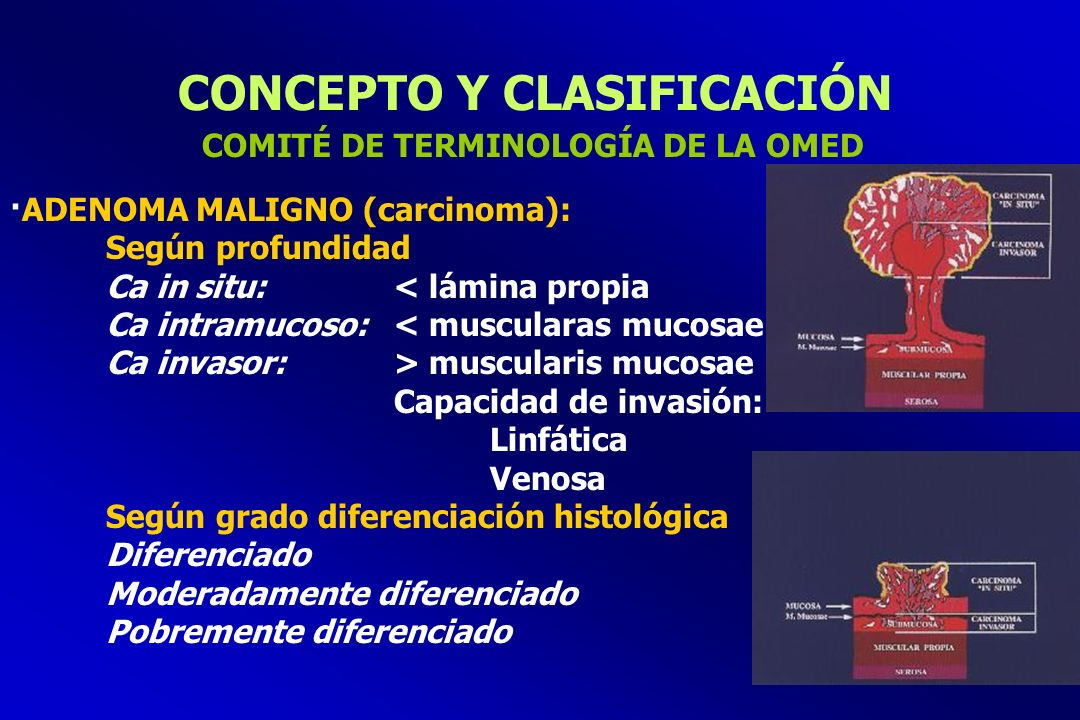 CONCEPTO Y CLASIFICACIÓN ·ADENOMA MALIGNO (carcinoma): Según profundidad Ca in situ:< lámina propia Ca intramucoso:< muscularas mucosae Ca invasor:> m