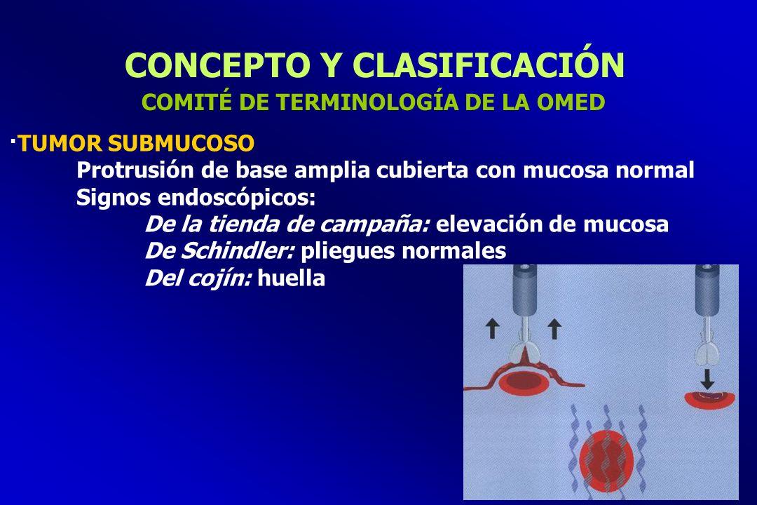 CONCEPTO Y CLASIFICACIÓN ·TUMOR SUBMUCOSO Protrusión de base amplia cubierta con mucosa normal Signos endoscópicos: De la tienda de campaña: elevación