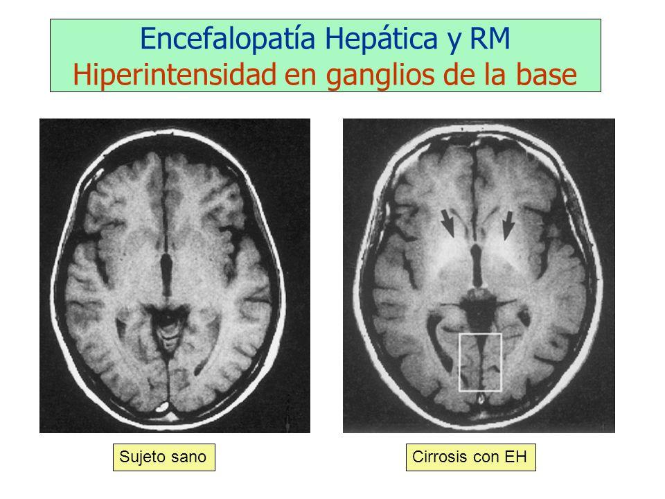 Encefalopatía Hepática y RM Hiperintensidad en ganglios de la base Sujeto sanoCirrosis con EH