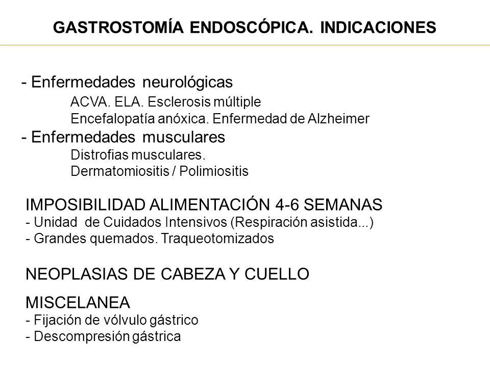 GASTROSTOMÍA ENDOSCÓPICA. INDICACIONES DISFAGIA NO OBSTRUCTIVA - Enfermedades neurológicas ACVA. ELA. Esclerosis múltiple Encefalopatía anóxica. Enfer