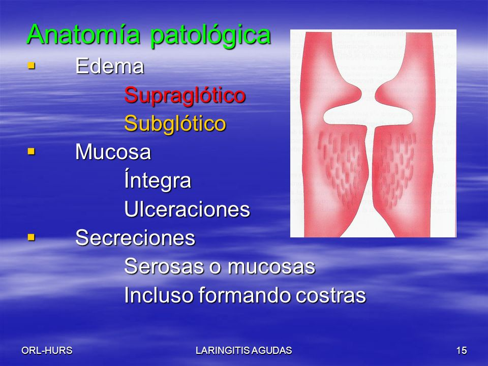 ORL-HURSLARINGITIS AGUDAS15 Anatomía patológica Edema EdemaSupraglóticoSubglótico Mucosa MucosaÍntegraUlceraciones Secreciones Secreciones Serosas o mucosas Incluso formando costras