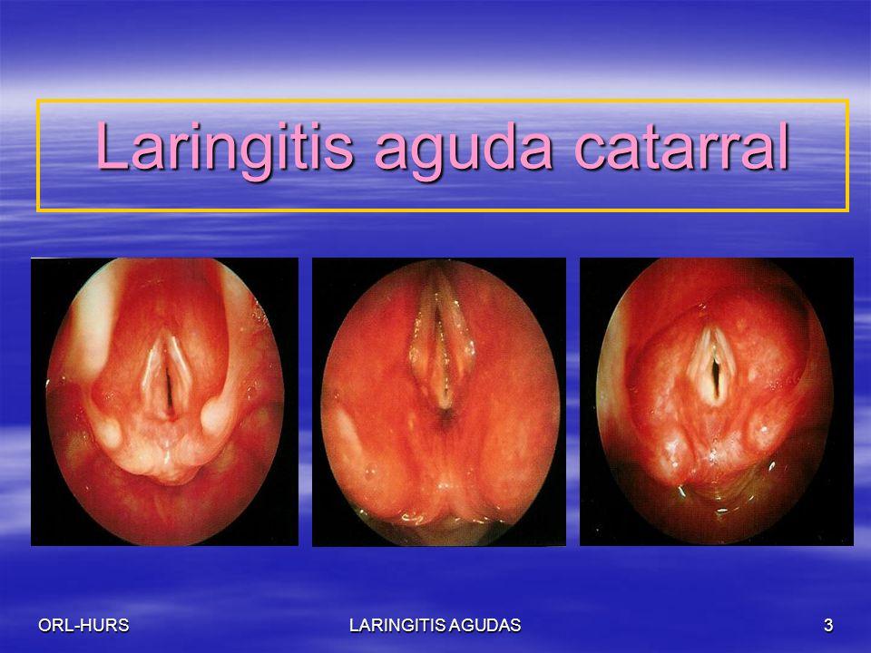ORL-HURSLARINGITIS AGUDAS3 Laringitis aguda catarral