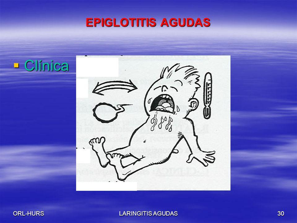 ORL-HURSLARINGITIS AGUDAS30 EPIGLOTITIS AGUDAS Clínica Clínica