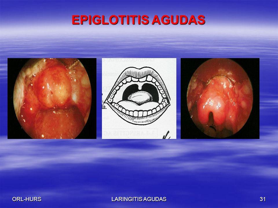 ORL-HURSLARINGITIS AGUDAS31 EPIGLOTITIS AGUDAS