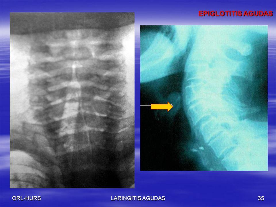 ORL-HURSLARINGITIS AGUDAS35 EPIGLOTITIS AGUDAS