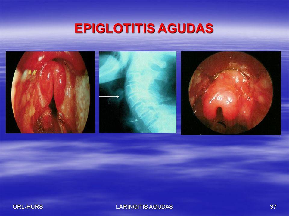 ORL-HURSLARINGITIS AGUDAS37 EPIGLOTITIS AGUDAS