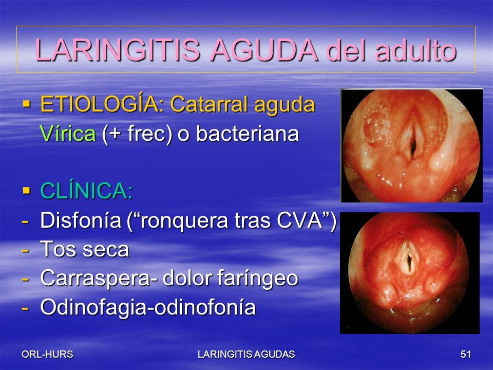 ORL-HURSLARINGITIS AGUDAS51 LARINGITIS AGUDA del adulto ETIOLOGÍA: Catarral aguda ETIOLOGÍA: Catarral aguda Vírica (+ frec) o bacteriana Vírica (+ frec) o bacteriana CLÍNICA: CLÍNICA: -Disfonía (ronquera tras CVA) -Tos seca -Carraspera- dolor faríngeo -Odinofagia-odinofonía