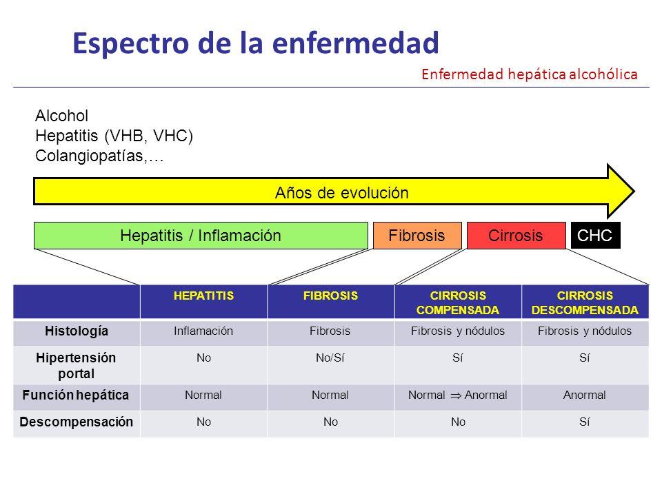 Esteatosis hepática (90 %) Esteatohepatitis Hepatitis aguda alcohólica Fibrosis hepática (10-35 %) Cirrosis (8-20 %) Hepatocarcinoma Espectro de la enfermedad Enfermedad hepática alcohólica