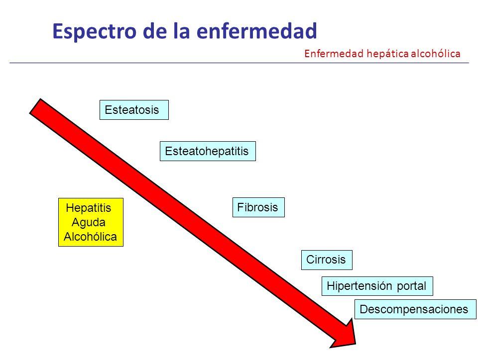 Espectro de la enfermedad Enfermedad hepática alcohólica Esteatosis Esteatohepatitis Fibrosis Cirrosis Hepatitis Aguda Alcohólica Hipertensión portal