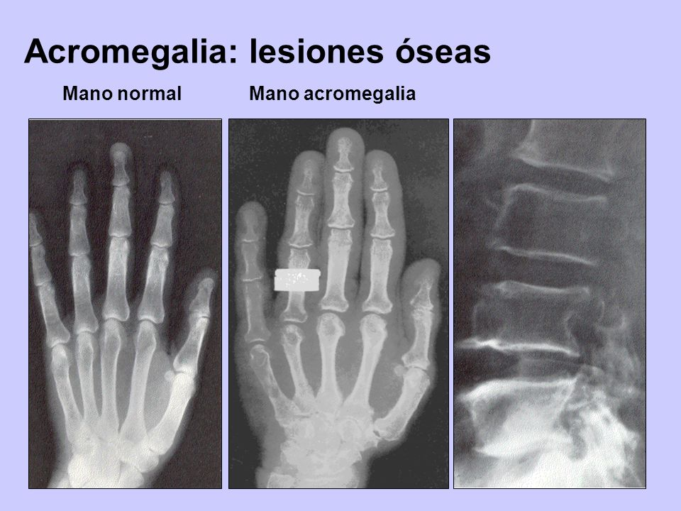 Acromegalia: lesiones óseas Mano normalMano acromegalia